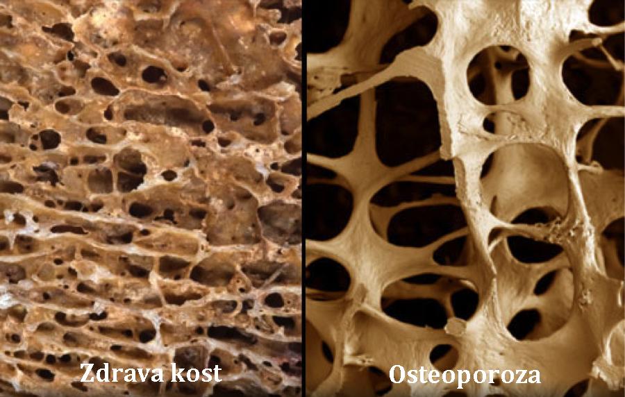 Zdrava kost i kost oboljela od osteoporoze