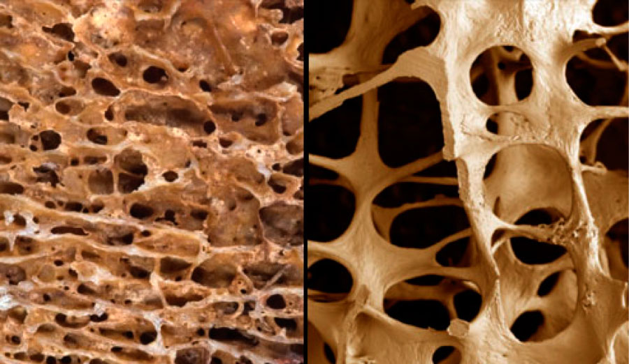healthy bone and osteoporosis (osteoporotic bone)