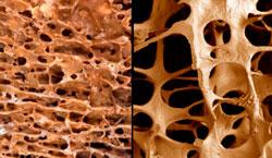 Zdravlje kostiju može se mjeriti njezinom gustoćom, kost zahvaćena osteoporozom znatno je slabija od zdrave kosti