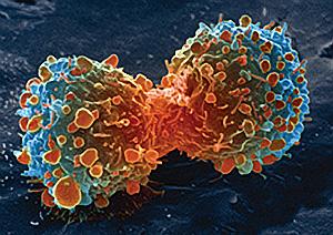 rak-pluca-brzo-raste-dijeljenjem-stanica