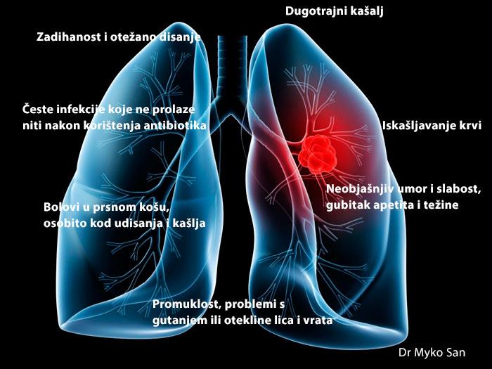 rak-pluca-simptomi